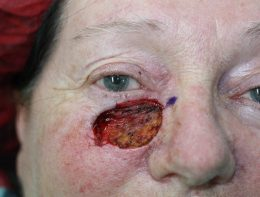 A very large hole from a BCC or Basal cell carcinoma following Mohs surgery.