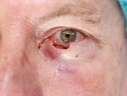 Image of lower eyelid after Mohs surgery.