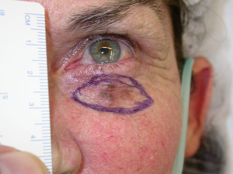Lentigo Maligna Melanoma shown under a womans lower eyelid. The area marked out with a blue skin pen is ready to be excised with Mohs surgery and reconstructed by Dr Anthony Maloof in Sydney.