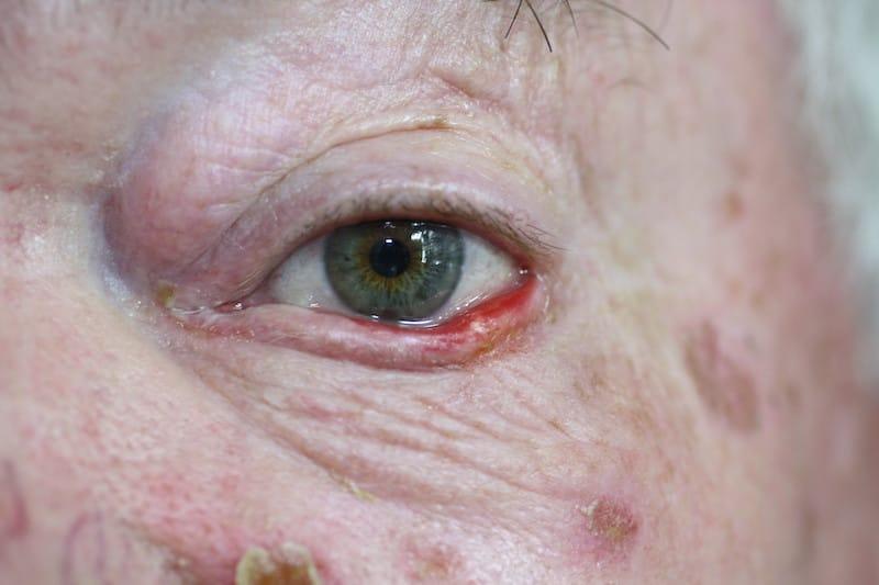 Microcystic adnexal carcinoma