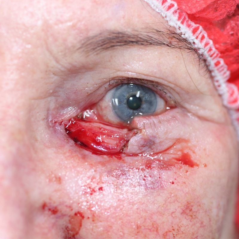 A nasty Basal Cell Carcinoma (BCC) was removed through Mohs surgery in Sydney. The defect involved half of the lower eyelid and exposing the eye and the tear drain. This image is just prior to Mohs reconstruction surgery.