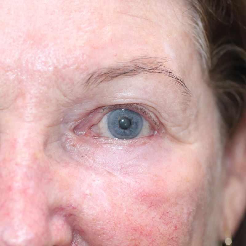 This is the after image just one month after Dr Anthony Maloof performed Mohs reconstruction surgery. The image shows a normal looking eye with no sign of the original defect.