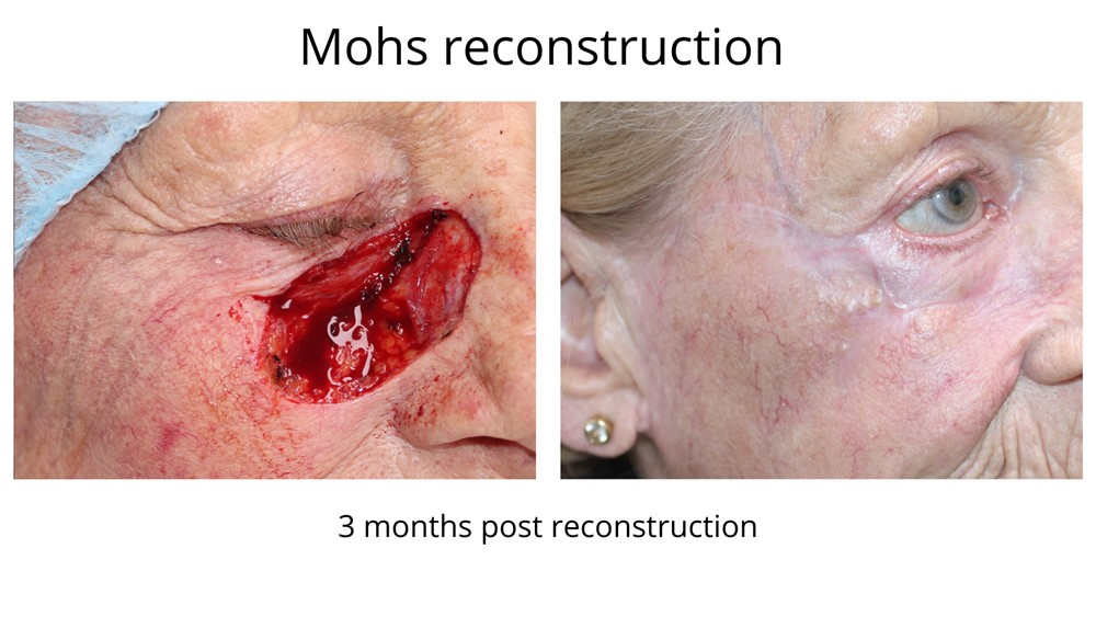 Mohs surgery before and after images. The first image shows the defect after Mohs surgery. The second image is the final result after Dr Anthony Maloof performed Mohs reconstructive surgery. The appearance of the face has been restored.