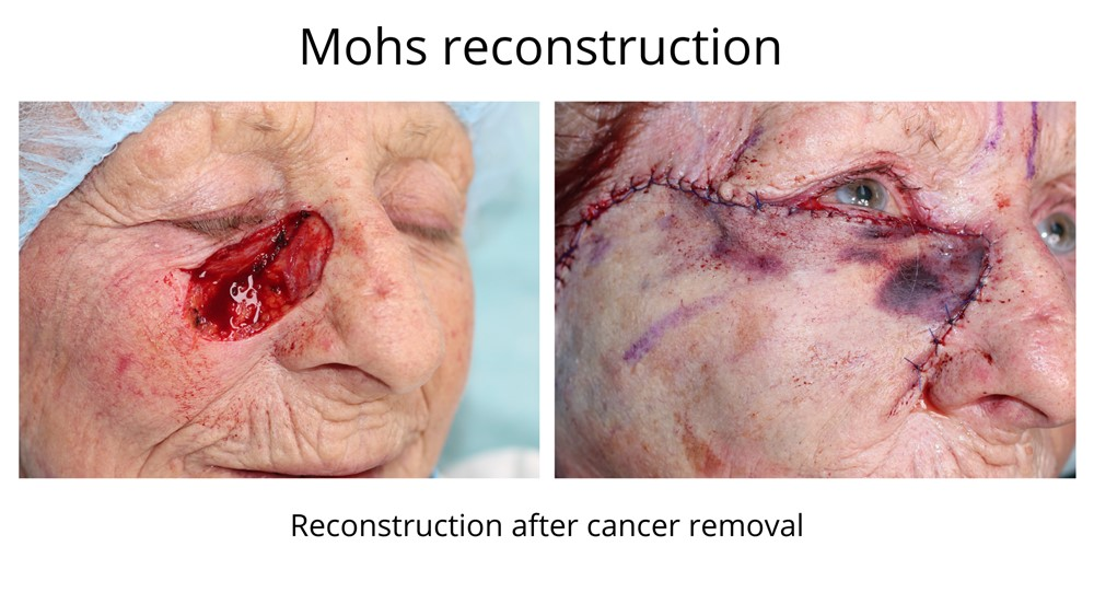 Before and after Mohs surgery with the extent of the repair apparent in the latter photo.