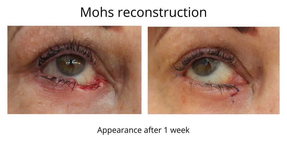 Mohs reconstructive surgery performed by Dr Anthony Maloof in Sydney. This is the appearance after 1 week. The sutures are still in place and will be removed in rooms.