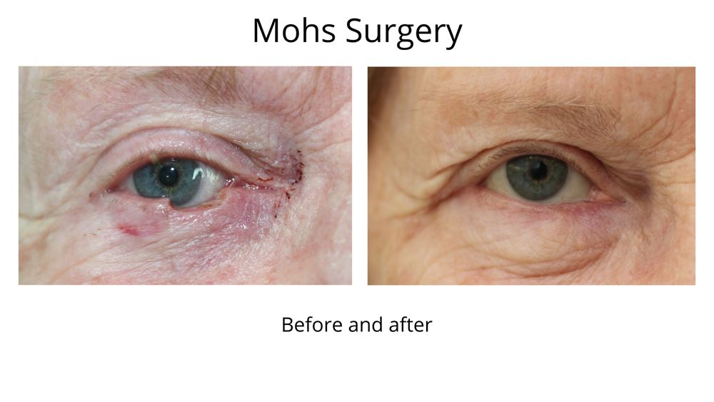 Before and after Mohs surgery. The second photo shows an incredible result with virtually no signs of the cancer ever being there.