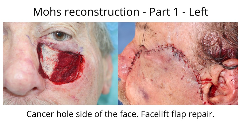 Before and after Mohs surgery. This is a large defect that required an extensive facelift flap repair as seen in the second photo.