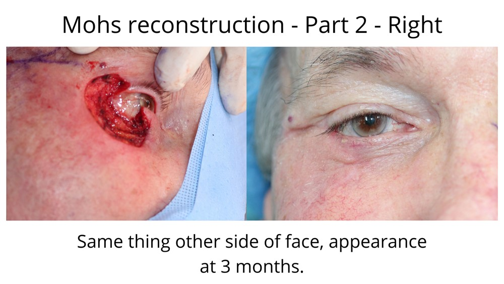 The cancer has been removed through Mohs surgery around the eye and has included the upper and lower eyelid. The second image shows the Mohs repair fully healed.