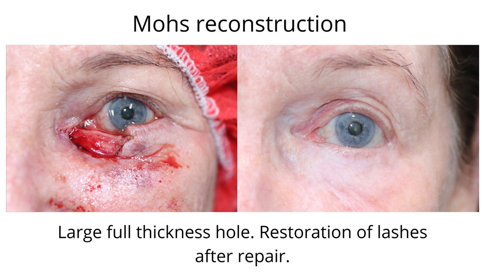 A large full thickness hole in the lower eyelid following Mohs surgery. You can see that the lashes as well as the eyelid have been restored following Mohs reconstructive surgery performed by Dr Anthony Maloof.