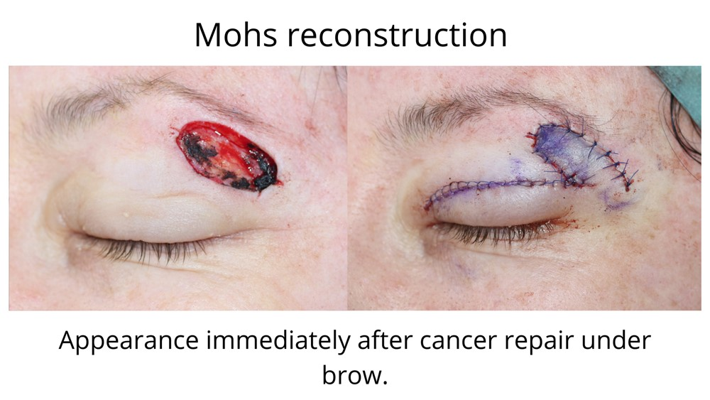 The first image shows the brow immediately after Mohs surgery whilst the second image shows the the flap repair performed by Dr Anthony Maloof following a Mohs reconstruction.