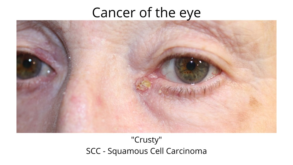 Cancer of the eye can come in all forms. This image depicts a crusty squamous cell carcinoma prior to undergoing Mohs surgery. This cancer is very close to the eye and may include damage to the tear duct.