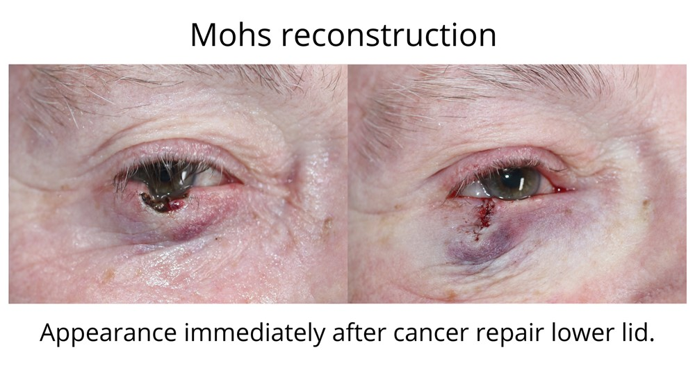 The defect left behind after Mohs surgery effecting the lower eyelid. The after image shows the lower eyelid repair after Dr Anthony Maloof performed Mohs reconstruction surgery.
