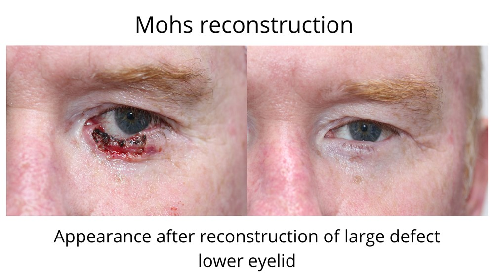 Mohs reconstruction before and after a large cancer was removed from the lower eyelid. Note the normal appearance after the wound is healed.
