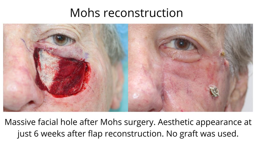Image showing Mohs reconstruction before and after. Image one shows a massive hole in the face after the cancer was removed with Mohs Surgery in Sydney. The second image shows the aesthetic appearance just 6 weeks after a flap reconstruction.